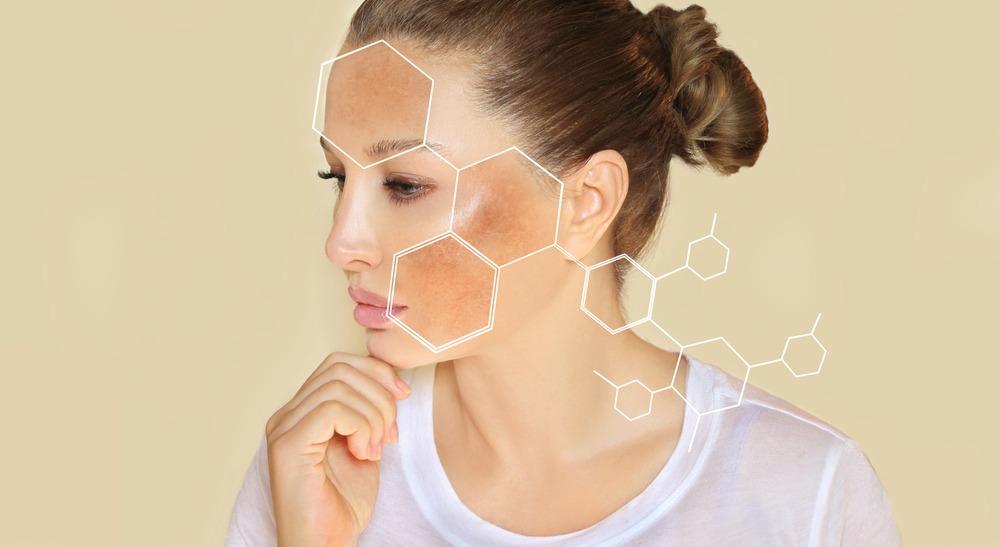 Dark,Spots,,Freckles,hyperpigmentation(melasma,Or,Chloasma),concept-,Skin,Lightening,,Skin,Whitening,,Skin